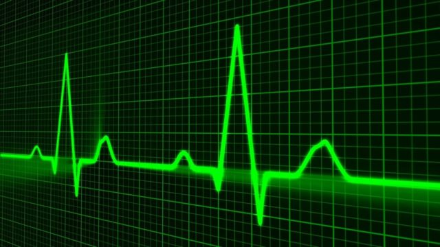 Heart to Beat Cardio Vascular Disease