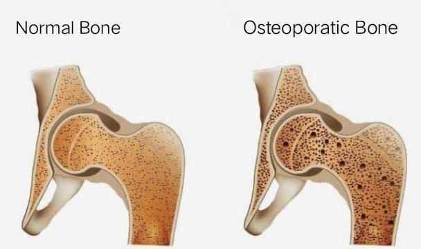 Treatment for Osteoporosis