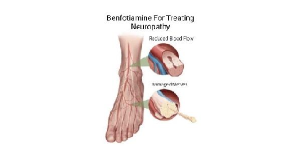 Benefits of Benfotiaminein Treating Neuropathy