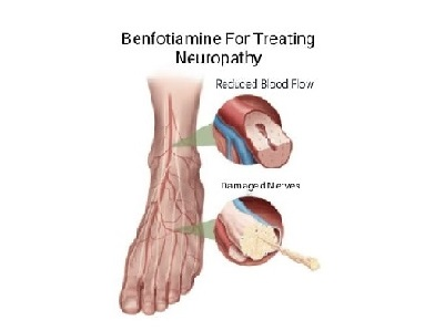 Benefits of Benfotiamine in Treating Neuropathy