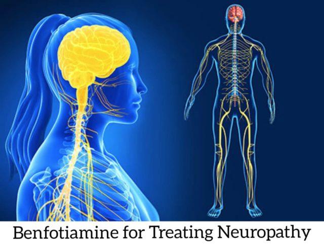 Benfotiaminein Treating Neuropathy and Benfotiamine is also known as thiamine.