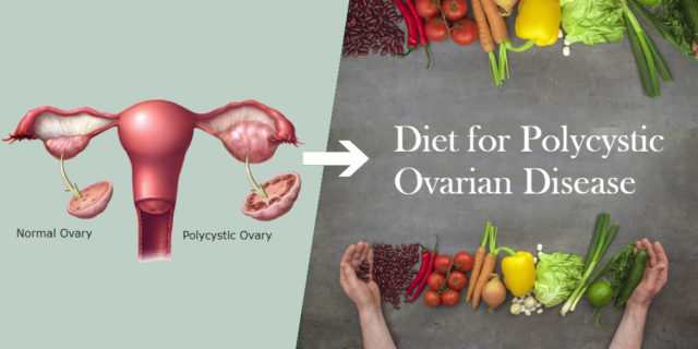 Herbal Treatment for PCOD-PCOS