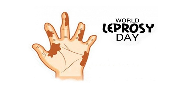 World Leprosy Day by anzen