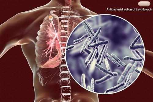 Dosage & Side Effects of Levofloxacin
