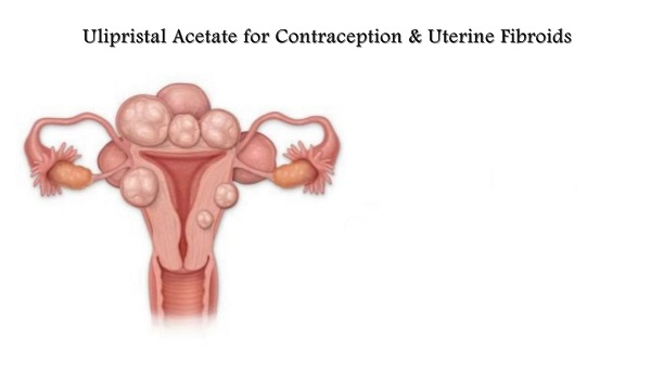 Ulipristal Acetate for Contraception and Uterine Fibroids