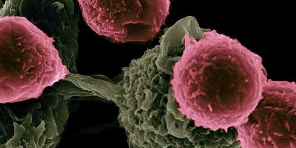 Pazopanib: for treatment of advanced soft tissue sarcoma