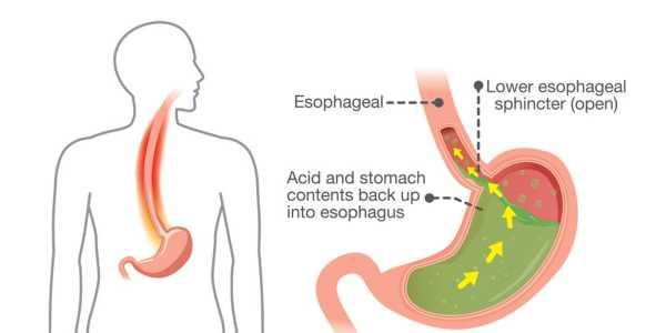 Cisapride: Effective for treating acid reflux